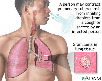 Tuberculosis+symptoms+pictures