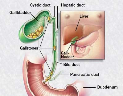 How should I go about treating my gallstones?
