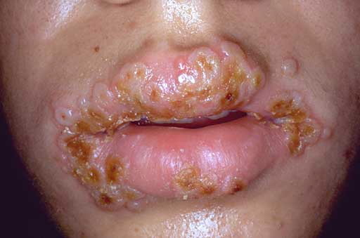 herpes mouth pictures. who has oral herpes/cold