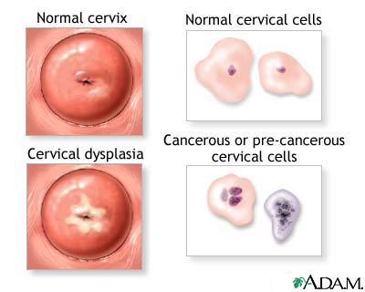 Females: Symptoms of HPV and how often does it come back?